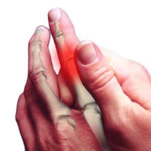 Полиневрит полинейропатия
