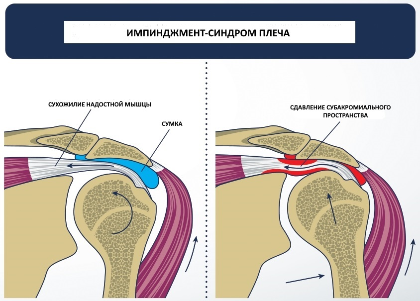 Возрастные изменения в суставах плеча лечение отложение солей в суставах